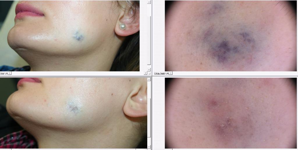 Angioma del volto prima e dopo trattamento con dye laser con dermoscopia