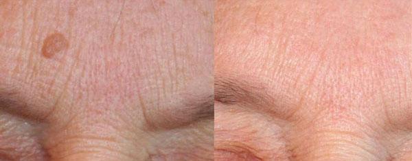 cheratosi seborroiche trattamento laser co2 - Skin Center Centro Laser Dermoestetico Pescara
