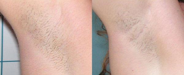 epilazione progressiva - Skin Center Centro Laser Dermoestetico Pescara