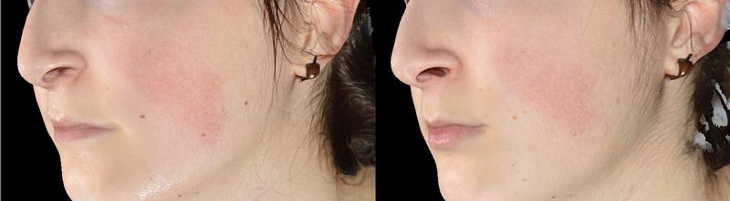 Giovane donna con eritrosi prima e dopo 3 IPL rodaminate (immagine 3D lato sx)