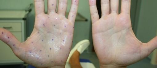 Figura 3. Mano destra 15 giorni dopo il trattamento con tossina botulinica per iperidrosi palmare e mano sinistra prima del trattamento