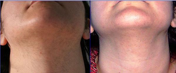 irsutismo - Skin Center Centro Laser Dermoestetico Pescara