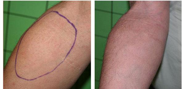 Laserlipolisi - Skin Center Centro Laser Dermoestetico Pescara
