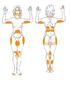 Laserlipolisi - Skin Center - Domenico Piccolo medico chirurgo dermatologo - Pescara