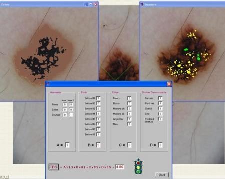 Diagnosi computer assistita di una lesione pigmentata cutanea con il Software Nevuscreen