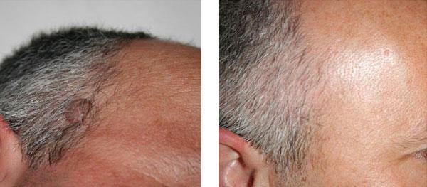 nevo papillomatoso - Skin Center Centro Laser Dermoestetico Pescara