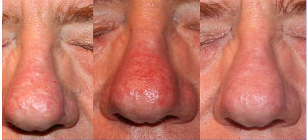 Rinofima -un trattamento con laser CO2 più due trattamenti con luce pulsata