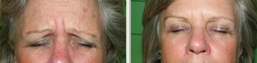 Figura 2. Rughe glabellari 15 giorni dopo botulino
