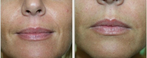 Figura 5. Solchi naso-genieni prima e subito dopo filler
