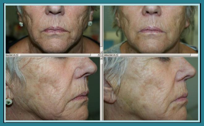 Paziente 12 giorni dopo Silhouette soft