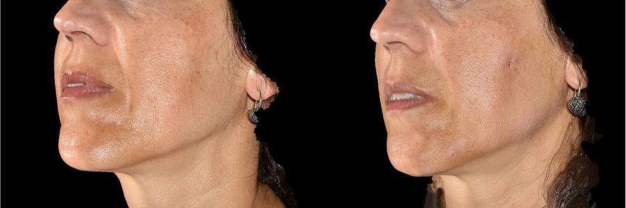 Solchi naso-genieni subito dopo fili riassorbibili (immagine 3D)