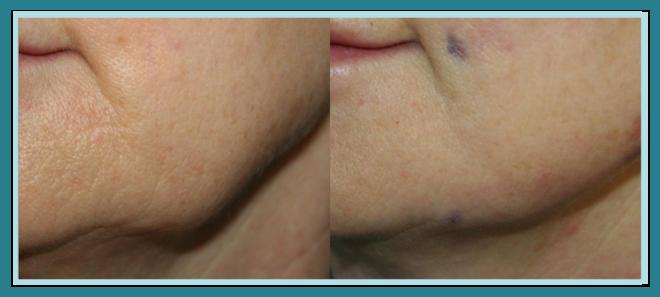 Paziente subito dopo sutura bidirezionale con fili Silhouette soft regione mandibolare (miglioramento della curva)