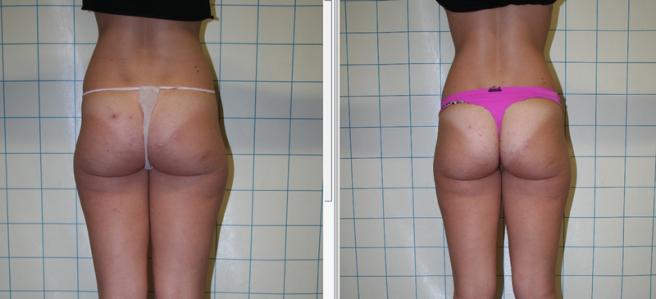 Paziente due mesi dopo laserlipolisi e fili riassorbibili