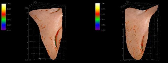 Stessa paziente. Misurazione computerizzata 3D profondità solco naso-genieno dx