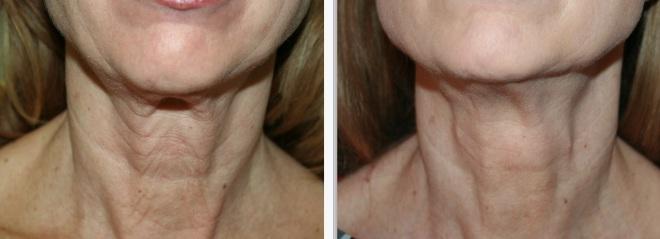Rughe del collo 2 mesi dopo Silhouette-soft