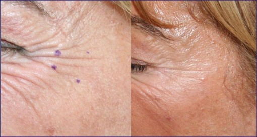 TOSSINA BOTULINICA E FILLERS RIASSORBIBILI - Skin Center Pescara