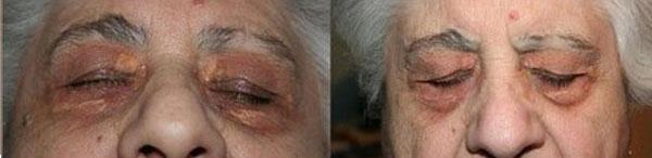 xantelasmi laser co2 - Skin Center Centro Laser Dermoestetico Pescara