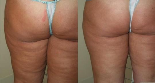 Trattamento Carbossiterapia - Domenico Piccolo dermatologo Skin Center Pescara