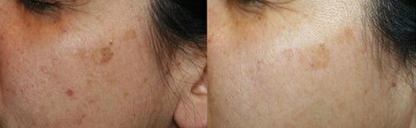 Lentigo senili - Skin Center Centro Laser Dermoestetico Pescara