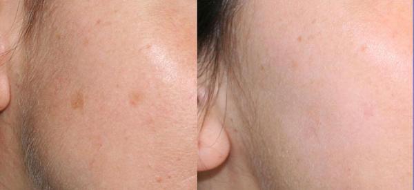 Lentigo solare - Skin Center Centro Laser Dermoestetico Pescara