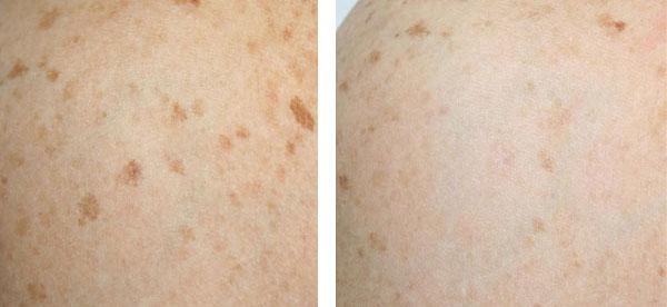 Lentigo solari - Skin Center Centro Laser Dermoestetico Pescara