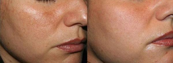 Melasma - Skin Center Centro Laser Dermoestetico Pescara