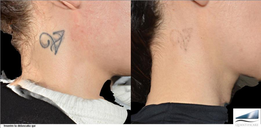 Rimozione tatuaggi - Skin Center - Dermatologia medica ...