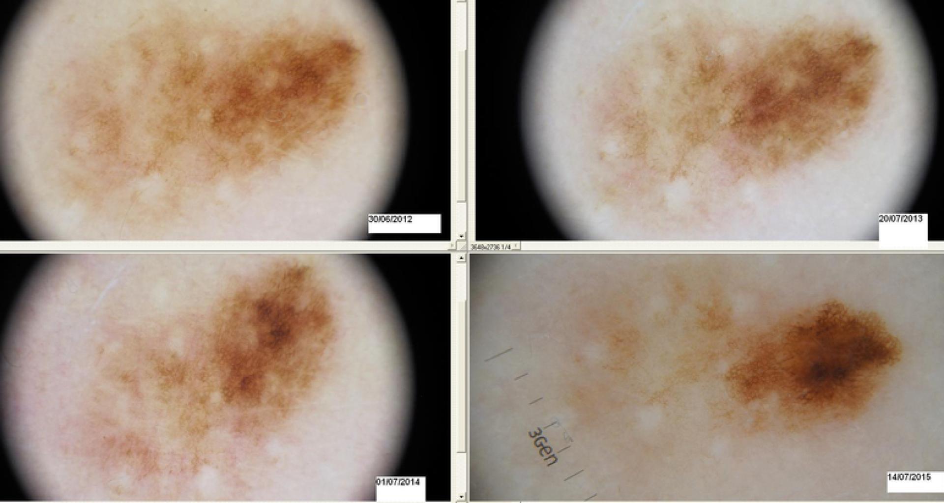 PREVENIRE IL MELANOMA CON LA VIDEODERMATOSCOPIA DIGITALE COMPUTERIZZATA domenico piccolo skin center