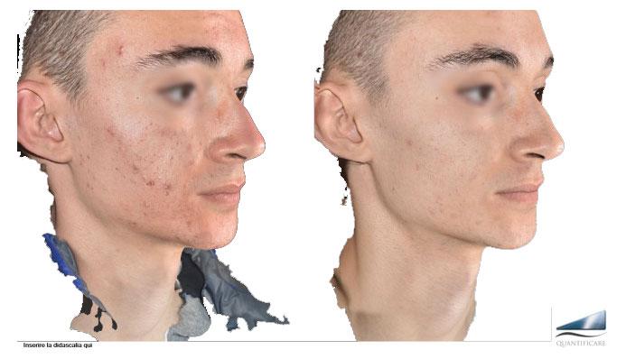 acne luce pulsata domenico piccolo skincenter