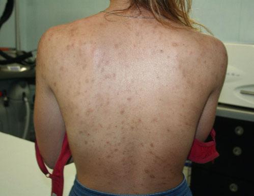 Before-trattamento cicatrici e cheloidi