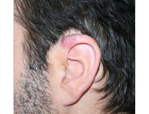 After-trattamento cicatrici e cheloidi
