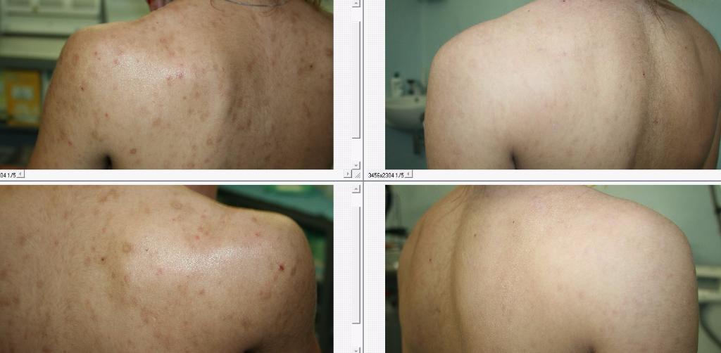 domenico piccolo skin center trattamento cicatrici e cheloidi