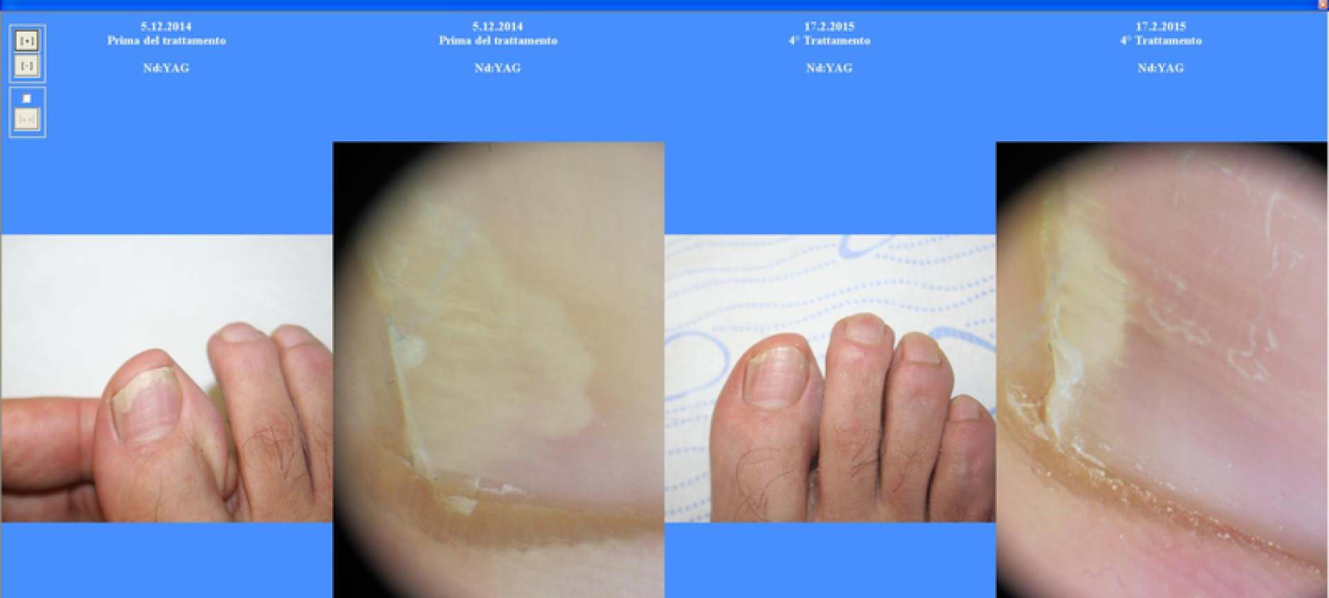 domenico piccolo skin center trattameto laser onicomicosi