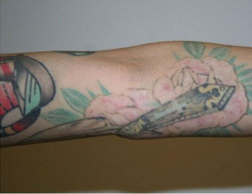 After-Rimozione tatuaggi