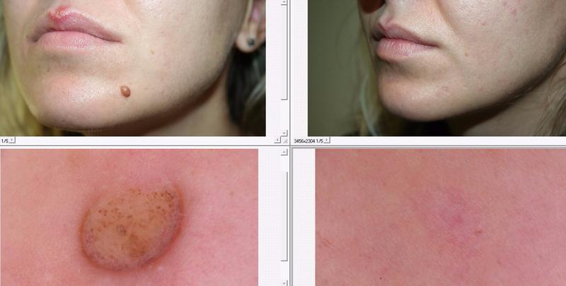 skin center domenico piccolo laser chirurgia cutanea