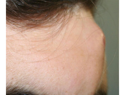 Before-trattamenti con il laser