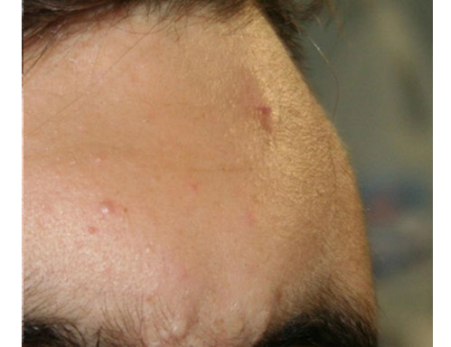After-trattamenti con il laser