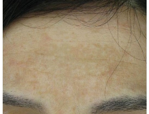 After-Macchie e melasma