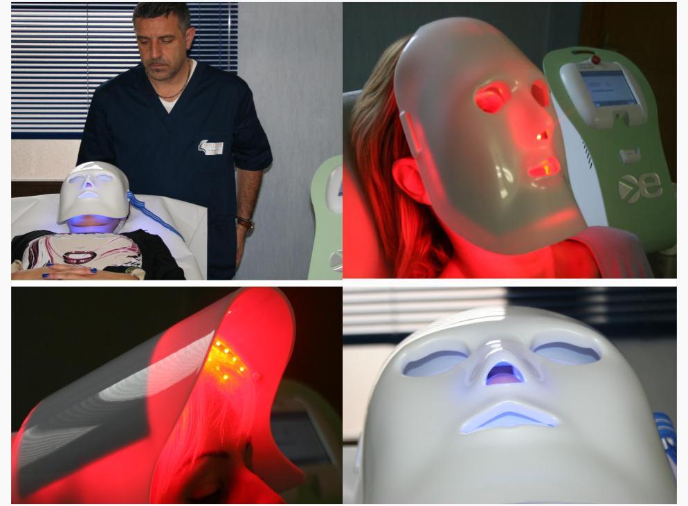 """""""Light Modulation"""" per il fotoringiovanimento del volto presso i centri Skin Center"""