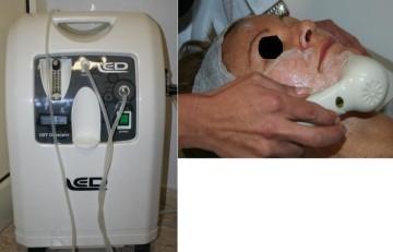 Apparecchiatura per l'ossigeno iperbarico e paziente durante il trattamento - Domenico Piccolo dermatologo Skin Center Pescara