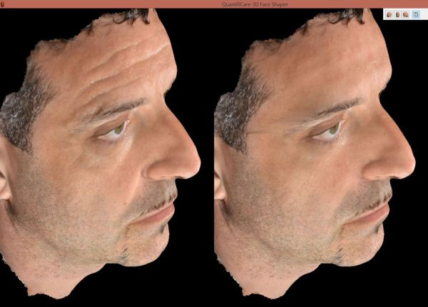 nuovo sistema fotografico digitale 3d - Domenico Piccolo dermatologo Skin Center Pescara