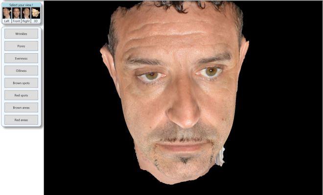 nuovo sistema fotografico digitale 3d - Domenico Piccolo dermatologo Skin Center Pescara
