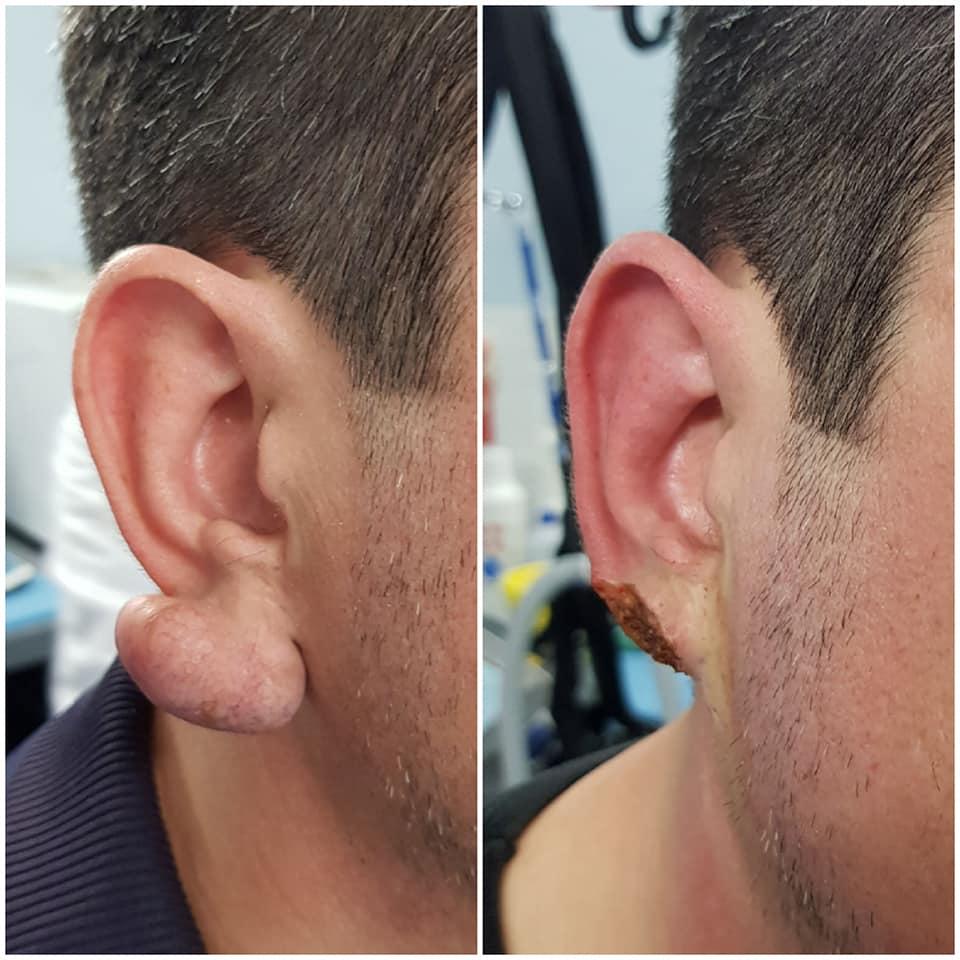 trattamento cheloide - centro laser dermoestetico skin center pescara