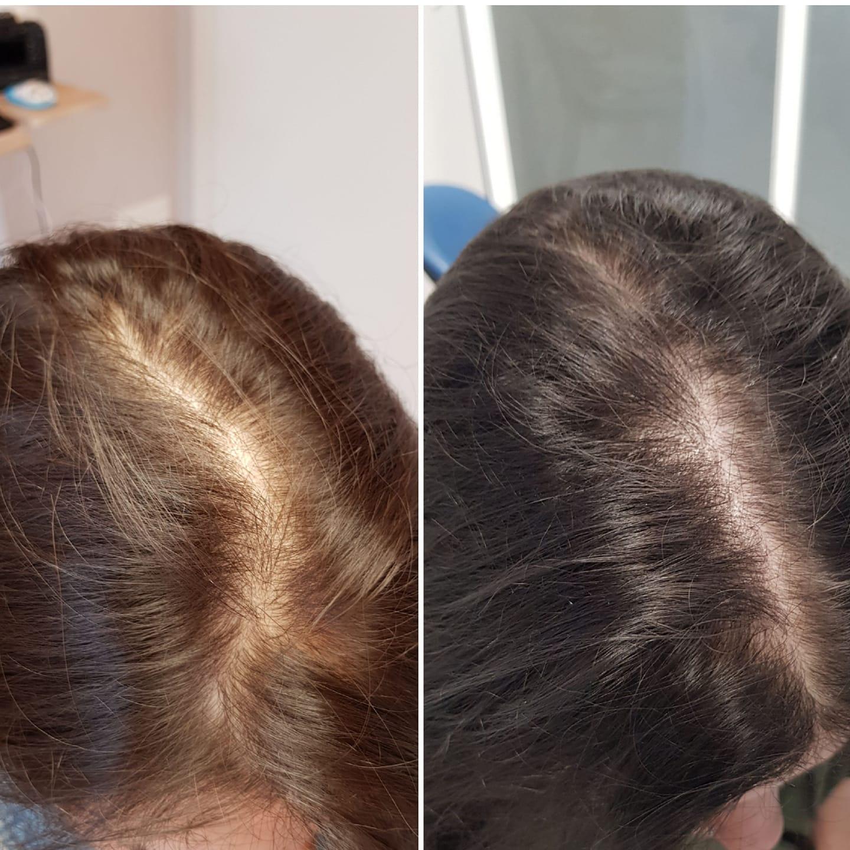 Case of the day. Nuovo caso di bio-fotostimolazione. Caduta capelli - DOMENICO PICCOLO - MEDICO CHIRURGO E DERMATOLOGO